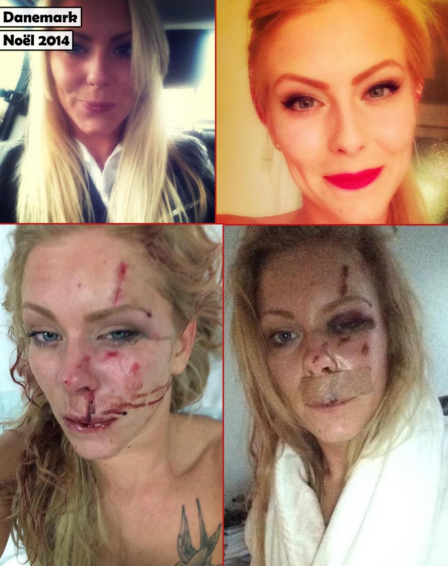 Nanna Skovmand, avant et après son agression par un gang de criminels somaliens.