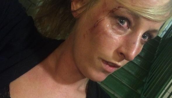 Charlène, 31 ans, agressé par des migrants de la 2e génération