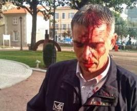 Le commissaire de police de Draguignan Philippe Granata blessé lors d'affrontements avec des Kurdes le 16 XII 2015 (DR)