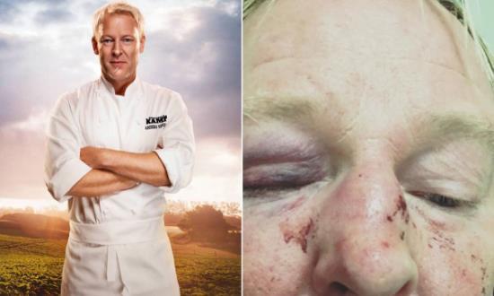Suède : le présentateur vedette, chantre de l'antiracisme, tabassé par des musulmans