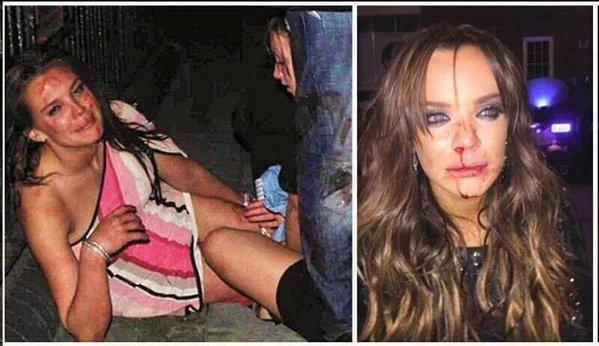 """Résultat de recherche d'images pour """"photo viols en suede"""""""