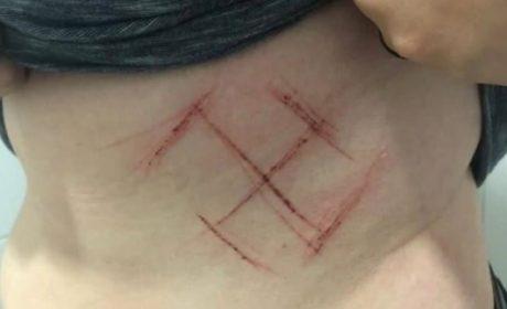 Brésil: l'agression avec croix gammée tatouée au couteau était une auto-mutilation